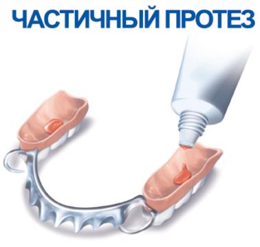 Фиксация протеза фото