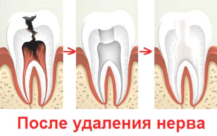 Зуб после удаления нерва