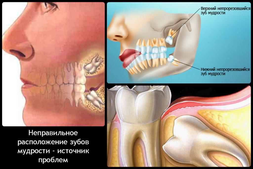 Зуб мудрости - частая причина зубной боли