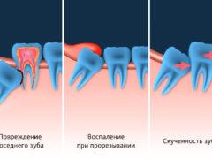 Что делать с кариесом зуба мудрости — лечить или удалять?