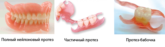 Некоторые виды зубных конструкций