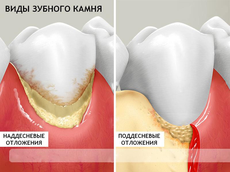 Виды зубного камня Фото