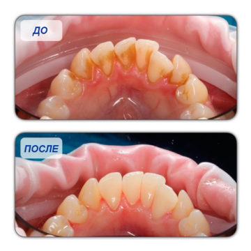 Зубы до и после очищения