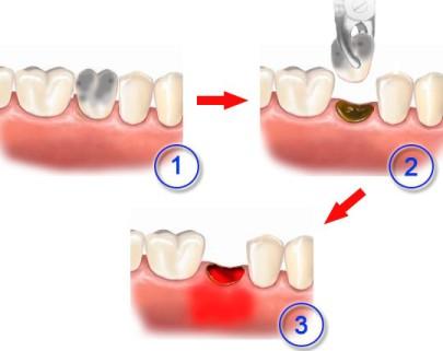 Воспаление после удаления зуба