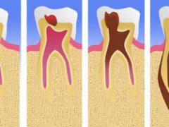 Лечить или удалять зуб с кариесом корня?