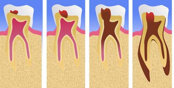 Скрытое заболевание зуба