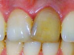 Проведение внутриканального отбеливания зубов