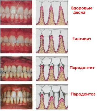 Симптомы и формы пародонтоза