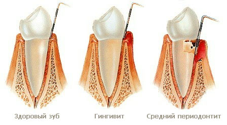 Отличия в здоровой и больной деснах