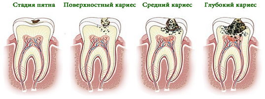 Основные стадии заболевания