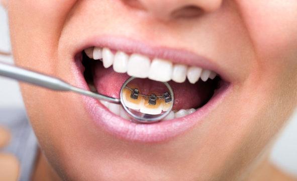 Внутренняя система выравнивания зубов