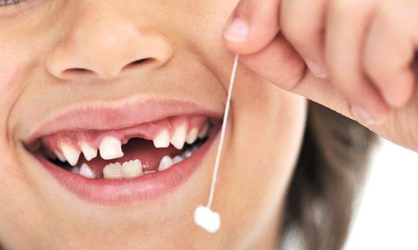 Как вырвать молочный зуб фото-2