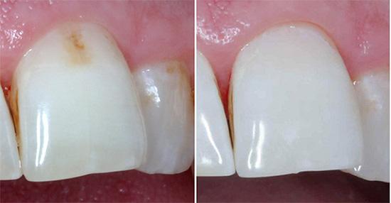 Начальный кариес до и после лечения