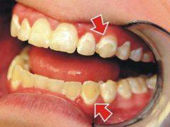 Причины и способы избавления от белого налета на зубах