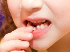 Присутствует ли корень в молочных зубах?