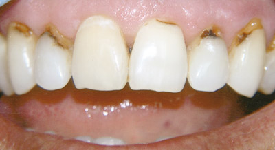 Заболевание пришеечной части зуба