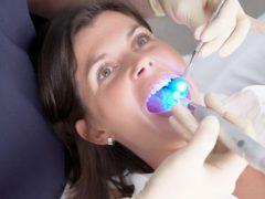 Способы лечения кариеса на передних зубах