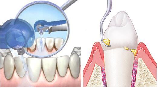 Снятие зубного камня - скеллинг