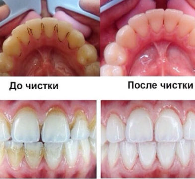 Зубы после удаления камня