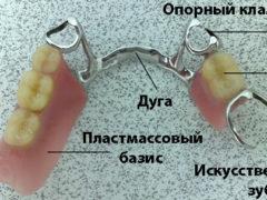 Какие зубные протезы лучше и комфортнее для пользования?