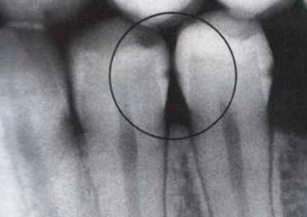 Рентгеновский снимок межзубного кариеса фото