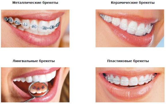 Разновидности брекет-систем фото