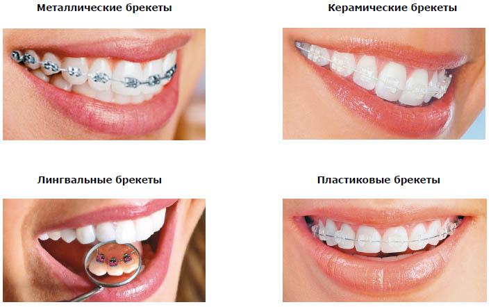 Разновидности брекет-систем