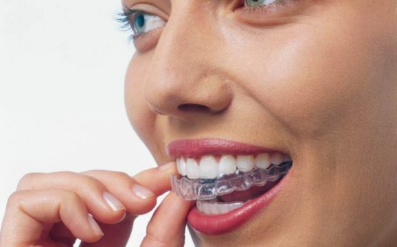 Капа для осветления зубной эмали