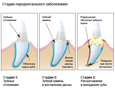 Стадии пародонтального заболевания фото