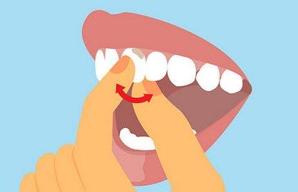 Расшатывание зубов