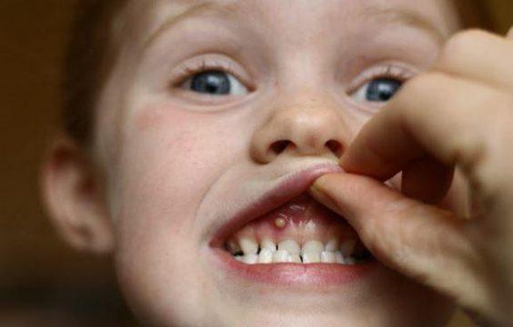 Воспаление десны у ребенка фото-1