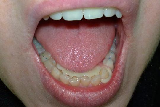 Вид конструкции во рту
