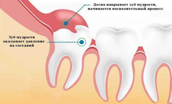 Десна накрывает восьмой зуб