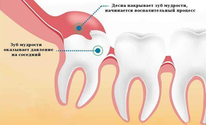 Показания к удалению капюшона зуба мудрости