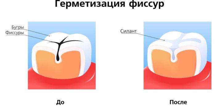 Метод герметизации фиссур