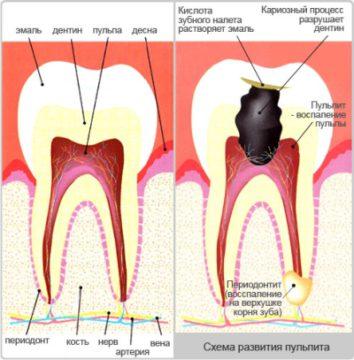 Пульпит - частая причина зубных болей