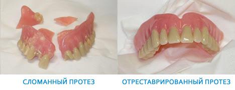 Реставрация протеза