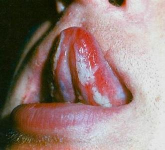 Белый налет под языком фото
