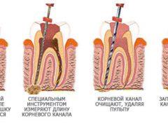Порядок проведения чистки каналов зуба