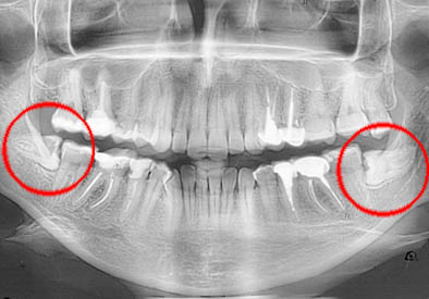 Рентген челюсти с ретенцией