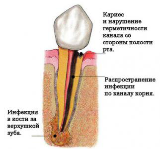 Воспаление корня зуба фото