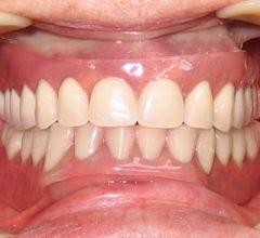 Современные съемные зубные протезы — обзор конструкций