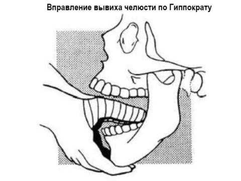 Вправление вывиха челюсти по Гиппократу фото