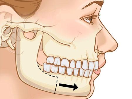 микрогнатия нижней челюсти фото