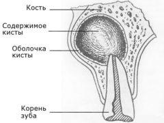 Что такое радикулярная киста и как ее лечить?