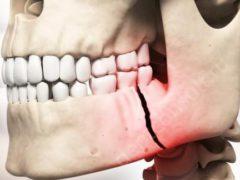 Как обнаружить рак челюсти и каковы методы его лечения?