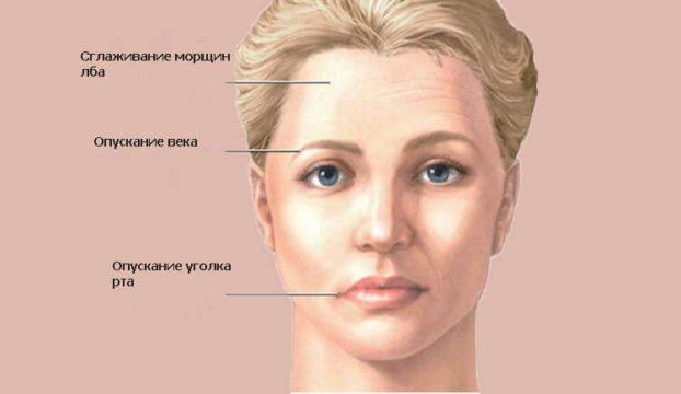 Симптомы воспаления троичного нерва фото