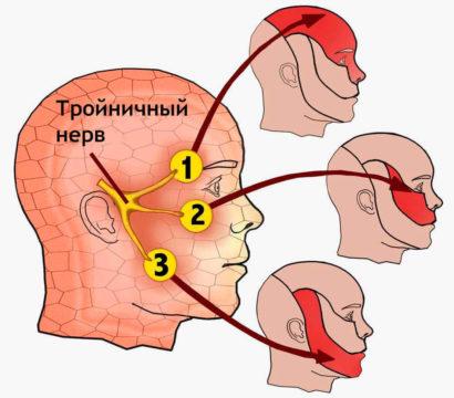 Где расположен тройничный нерв фото