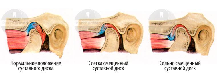 Положение суставного диска