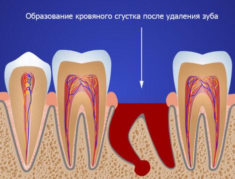 Кровяной сгусток вместо зуба
